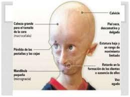 Caratteristiche progeria